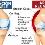 Reporte Inspirador Sobre Como Poner en Remisión la Artritis Reumatoides