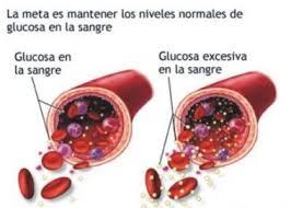 azúcar agregada y diabetes tipo 2